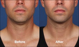 kybella_beforeafter1