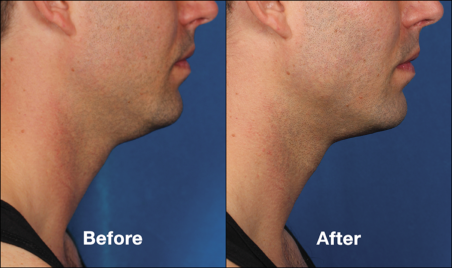Kybella Double Chin Reduction in Sacramento, CA | Roseville