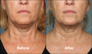 kybella_beforeafter6