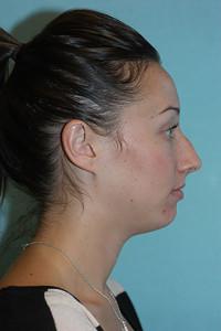 rhinoplasty-before