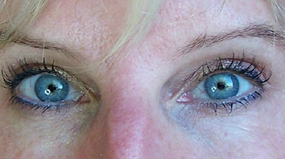 roseville_blepharoplasty_after