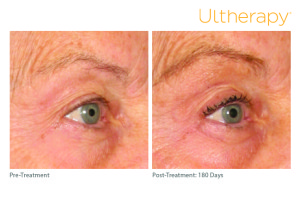 ultherapy_beforeandafter_brow_2_roseville_ca