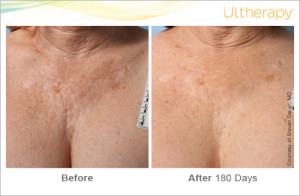 ultherapy_beforeandafter_chest_3_roseville_ca