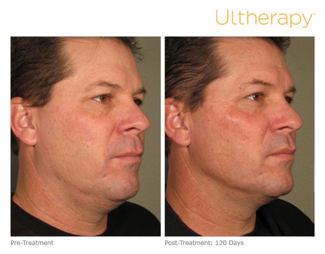 Ultherapy in Sacramento, CA   Roseville Facial Plastic Surgery