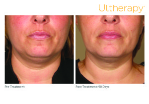 ultherapy_beforeandafter_lowerface_roseville_ca