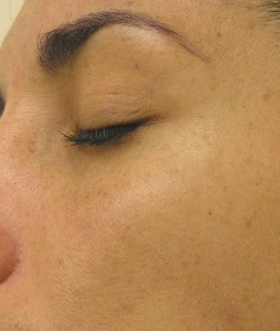 Hyperpigmentation_After_7_ Treatments